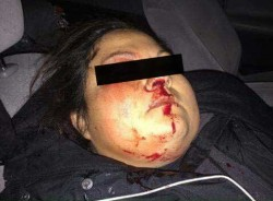 Woman hit in head by -less-than-lethal- ammunition - photo provided by steve gross